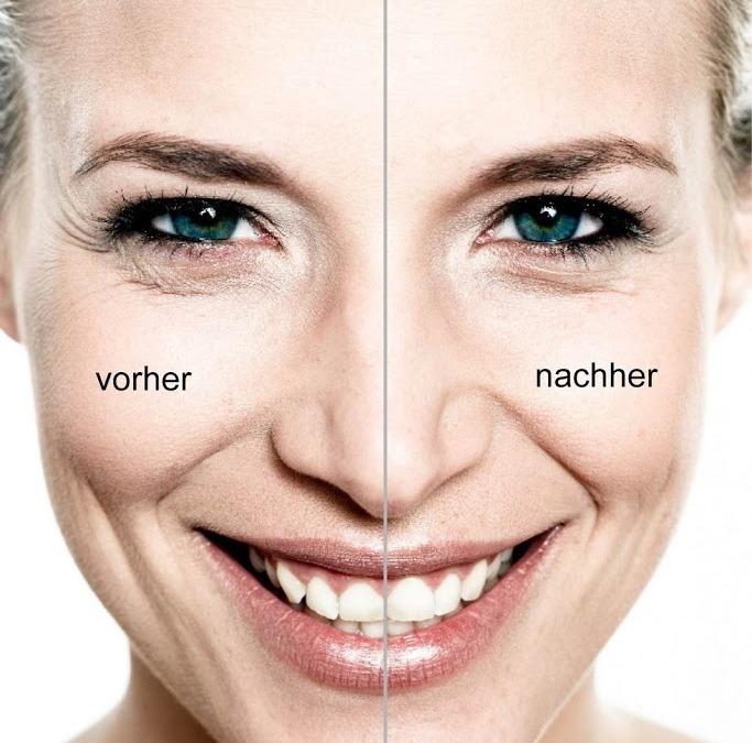 """Cosmaderm – Kwas hialuronowy – TEN produkt dla jędrnej, gładkiej skóry """"odcinek 1″"""